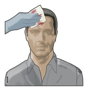 Digital composite of hand holding sterile gauze on bleeding head wound