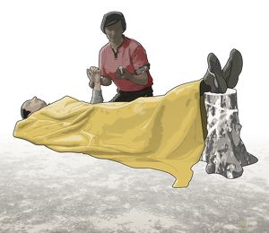 Digital composite of woman taking pulse of casualty lying on back under blanket with