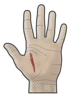 Digital illustration of incised wound on palm human hand